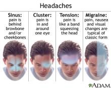 headaches 1