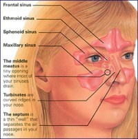sinusitis-physiology