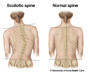 scoliotic-spine-normal-spine_0