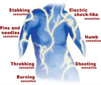 nerve-pain