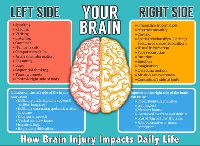 brainrightleft